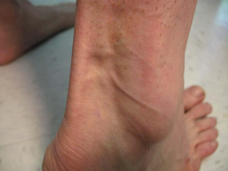 Photo Quiz: Unusual lumps to the lower leg with fat atrophy of the
