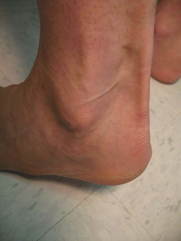 Erythema Nodosum The Foot And Ankle Online Journal