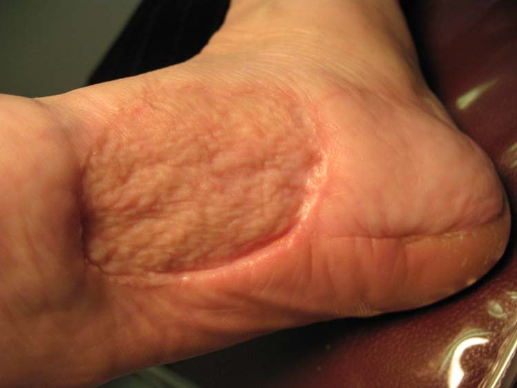 malignant melanoma of soft parts | The Foot and Ankle Online Journal