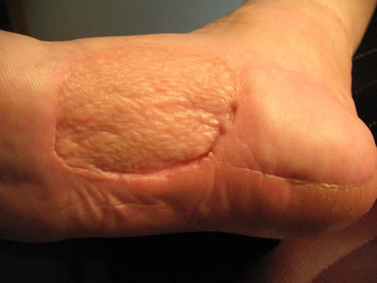 Clear cell sarcoma | The Foot and Ankle Online Journal