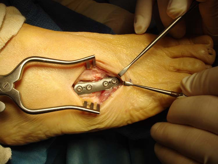 Treatment of Fourth Metatarsal Base Fracture Non-Unions in Middle