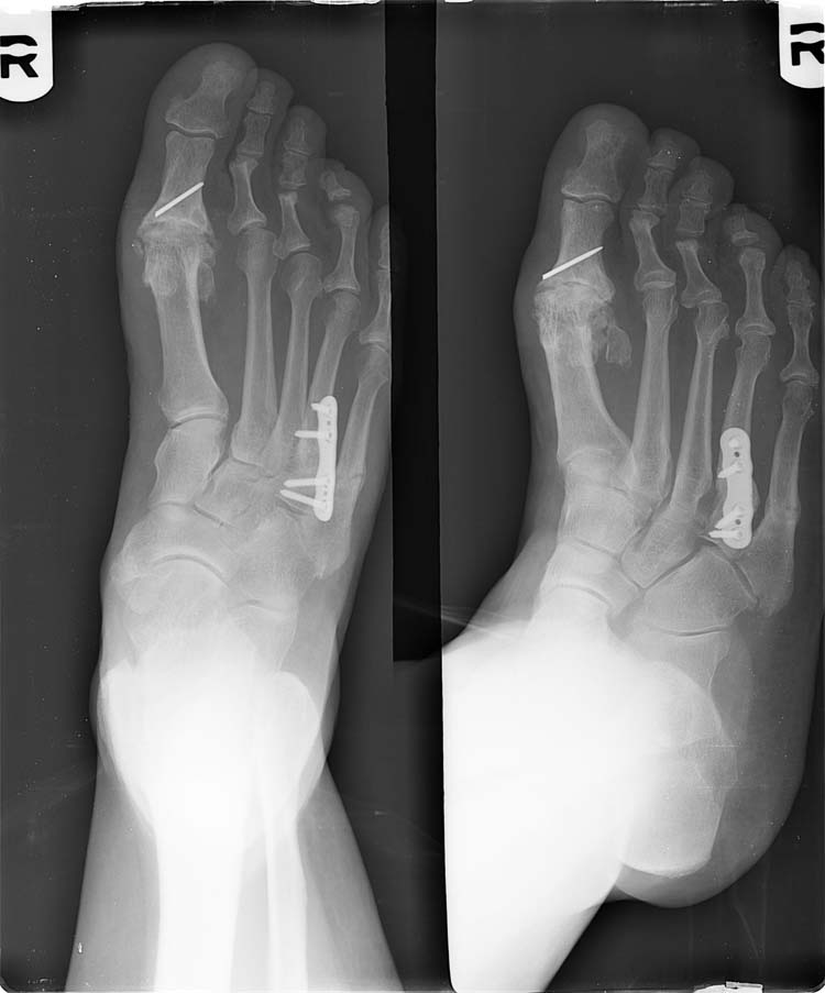 Treatment of Fourth Metatarsal Base Fracture Non-Unions in