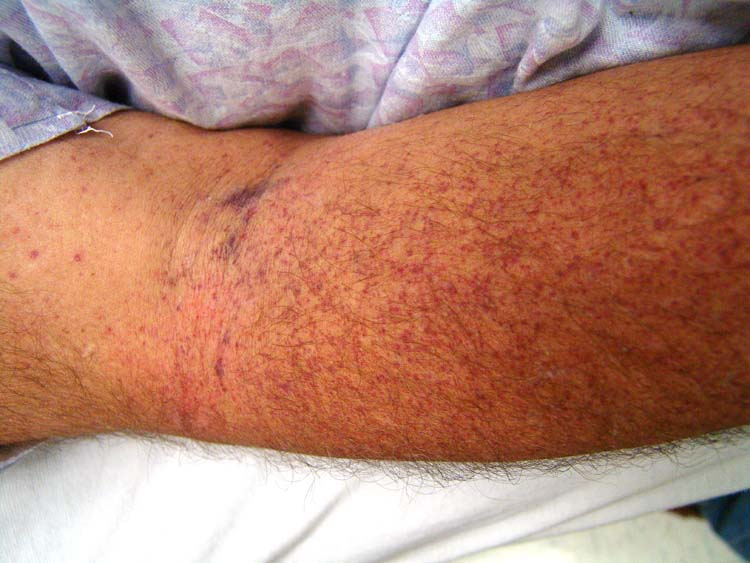Vancomycin-Induced Thrombocytopenia: A case report | The Foot and