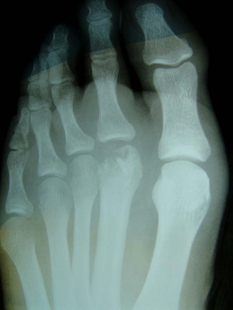 Freibergs Infraction Of The Second Metatarsal Head With
