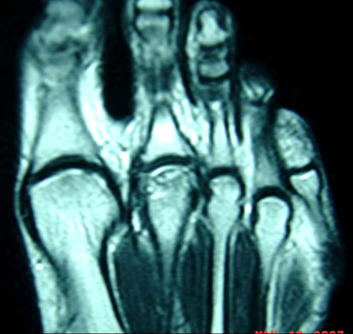 Freibergs Infraction The Foot And Ankle Online Journal