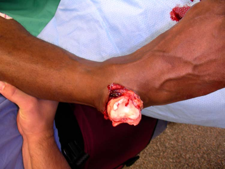 talus dislocation | The Foot and Ankle Online Journal
