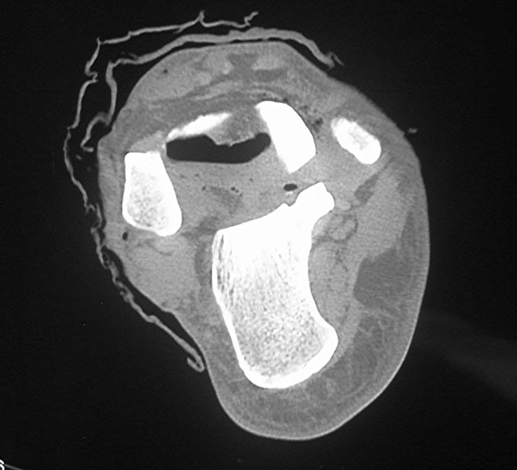 Open Extrusion of the Talus: A case report | The Foot and