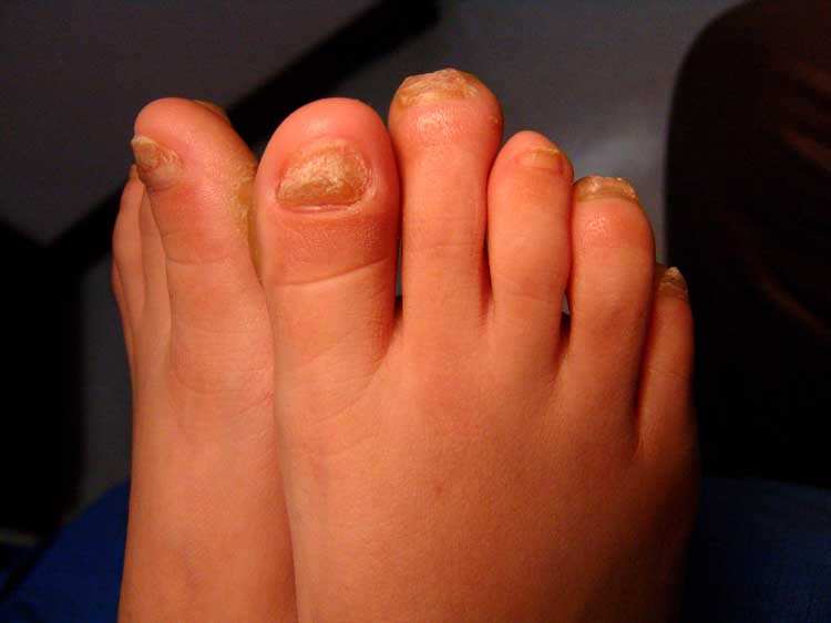PPK   The Foot and Ankle Online Journal