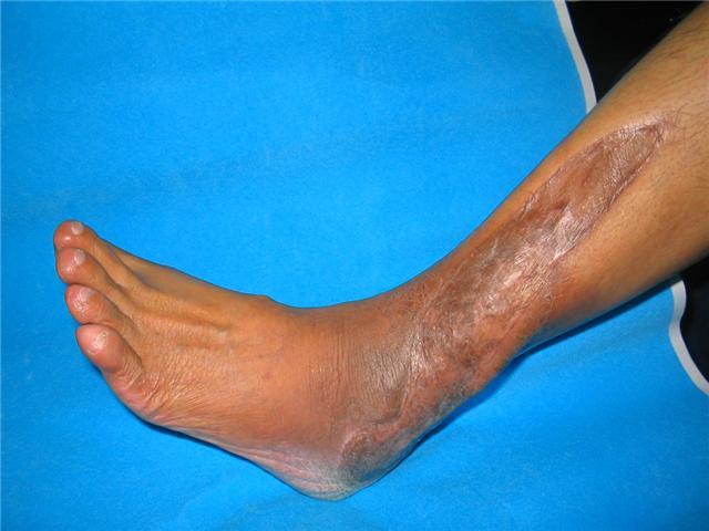 sarcoma cancer foot)