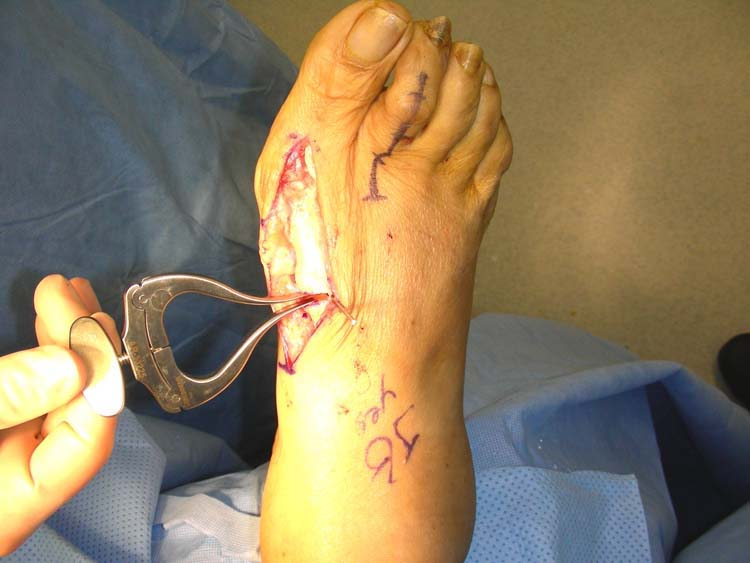 HAV deformity | The Foot and Ankle Online Journal
