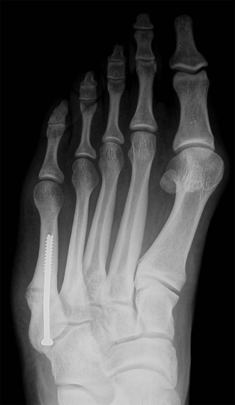 Jones fracture | The Foot and Ankle Online Journal