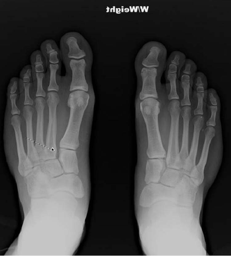 midfoot fracture | The Foot and Ankle Online Journal