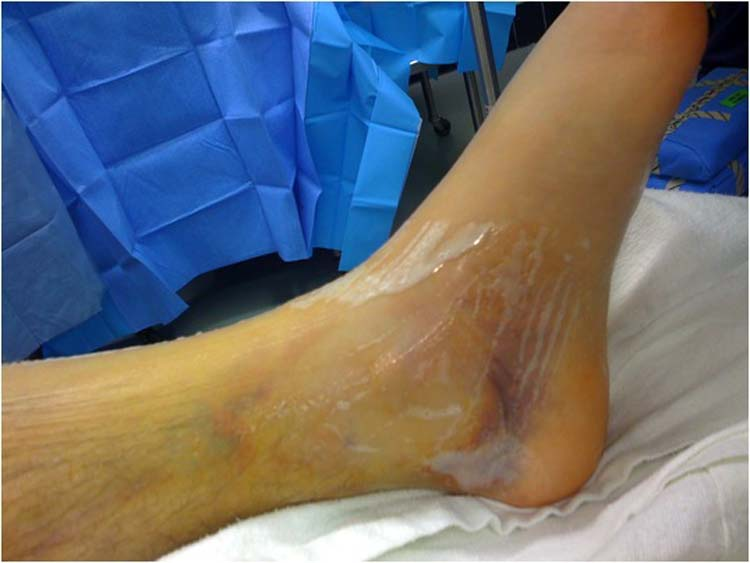 comminuted talar fracture | The Foot and Ankle Online Journal