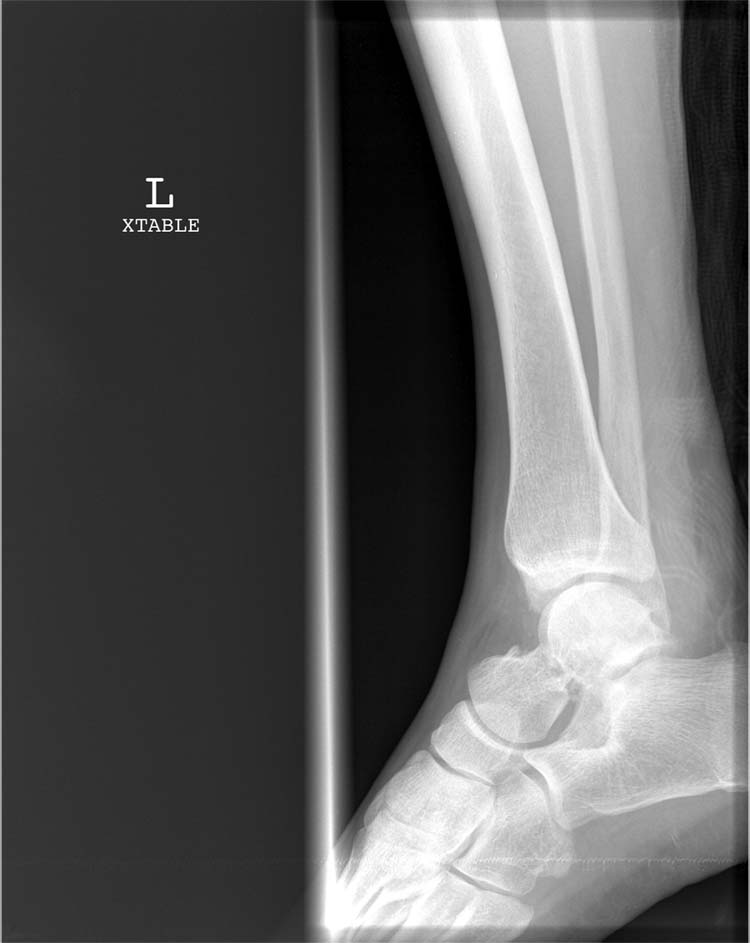 Comminuted Fracture X Ray