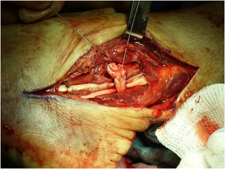 surgical correction of subluxing peroneal tendons
