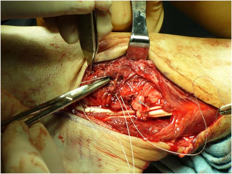 Peroneal Tendons The Foot And Ankle Online Journal