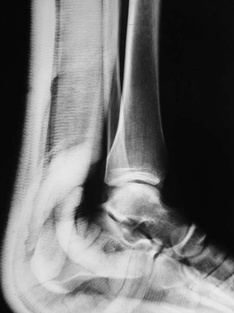 magnetic resonance imaging | The Foot and Ankle Online Journal