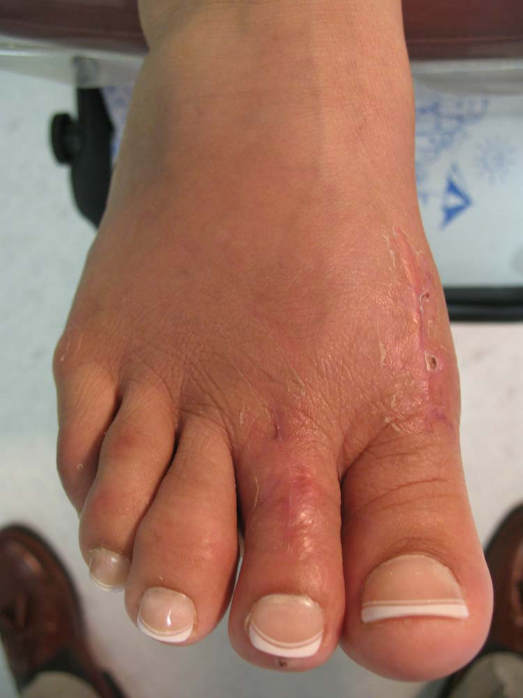 Hammertoe skeletal mature
