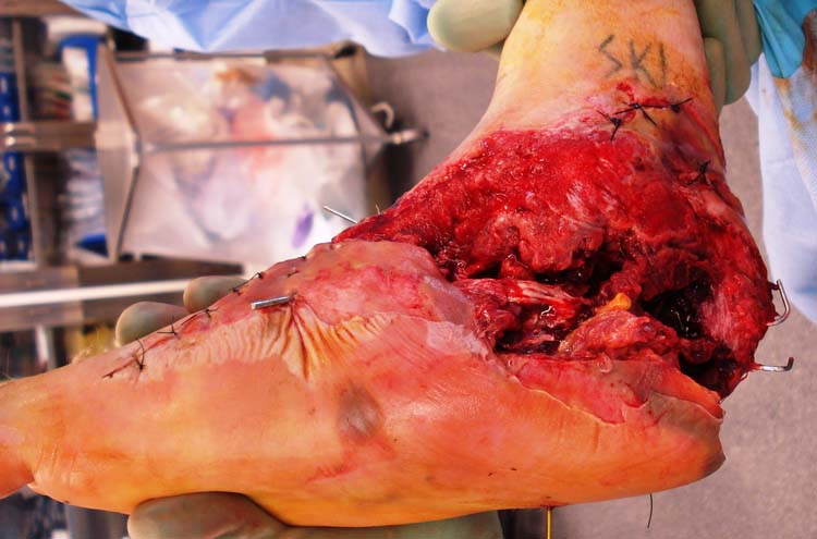 degloving injury the foot and ankle online journal