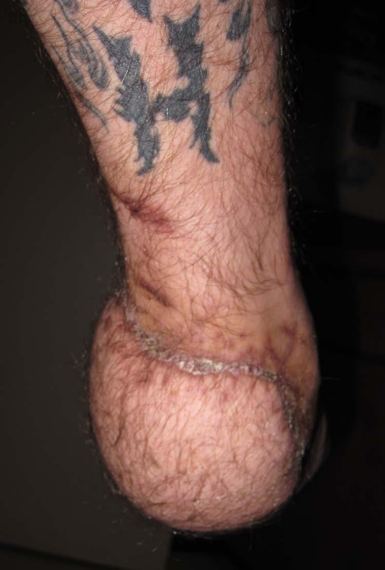 Degloving Injury