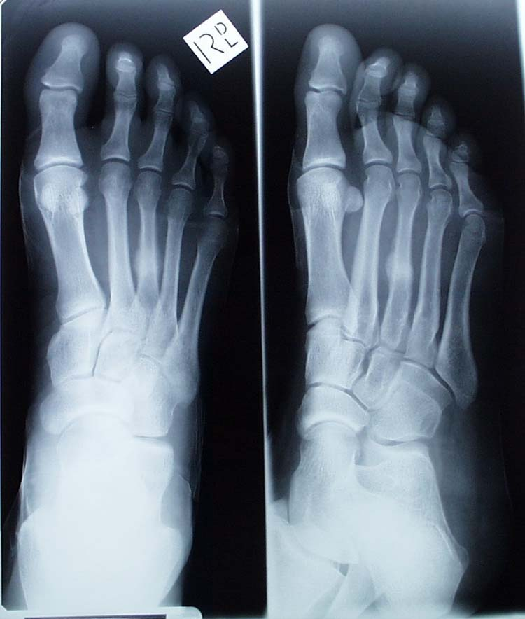 Stress Fracture The Foot And Ankle Online Journal