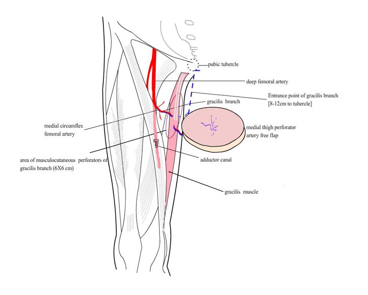 Medial Circumflex Femoral Artery Perforators The Foot And Ankle