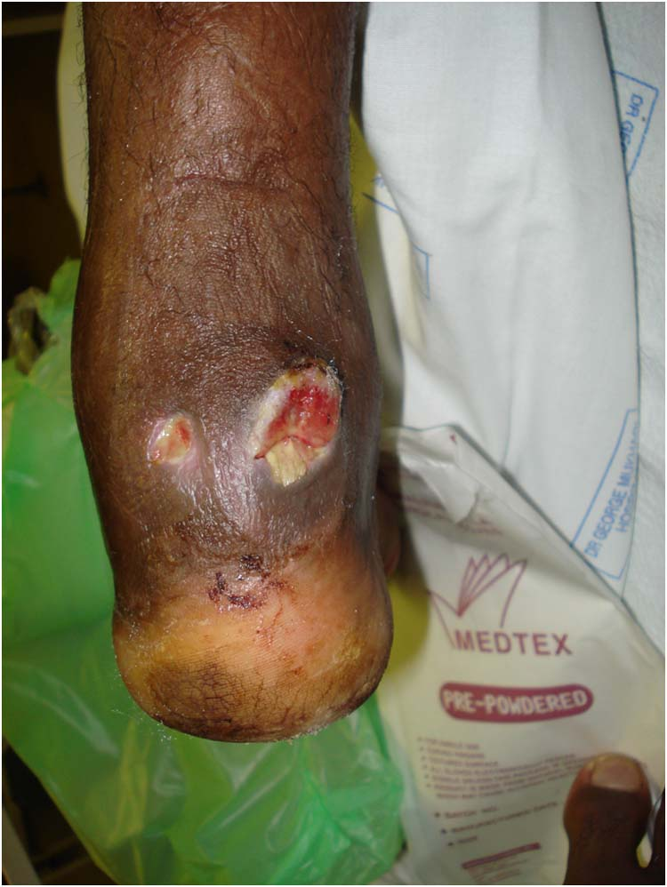 heel fracture   The Foot and Ankle Online Journal