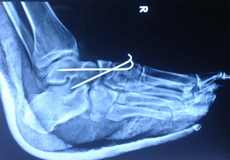 Talonavicular fracture | The Foot and Ankle Online Journal