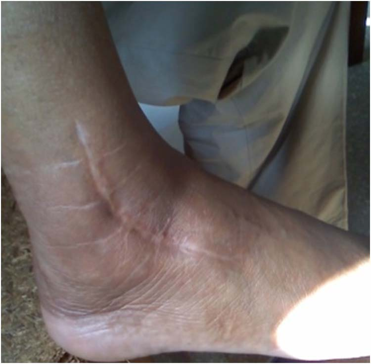 Talus | The Foot and Ankle Online Journal