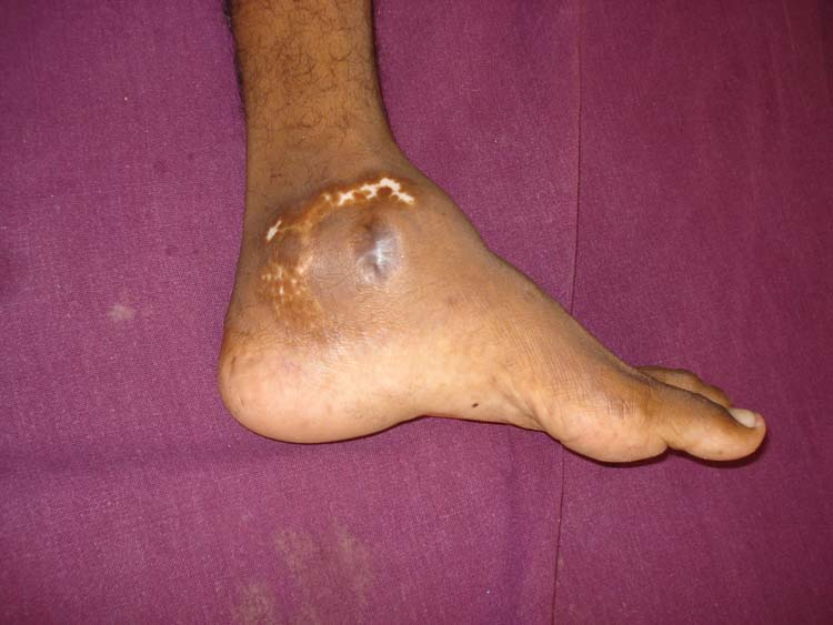 arthrodesis | The Foot and Ankle Online Journal