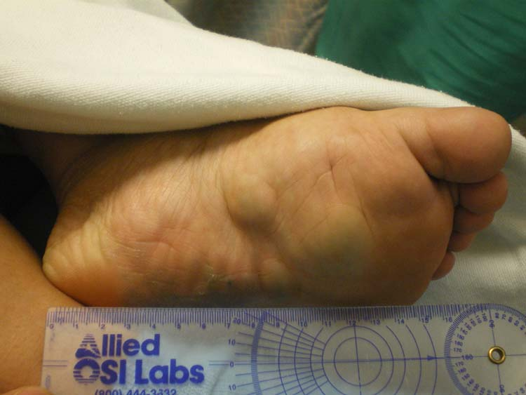 Adult hemangioma in the foot photos 290
