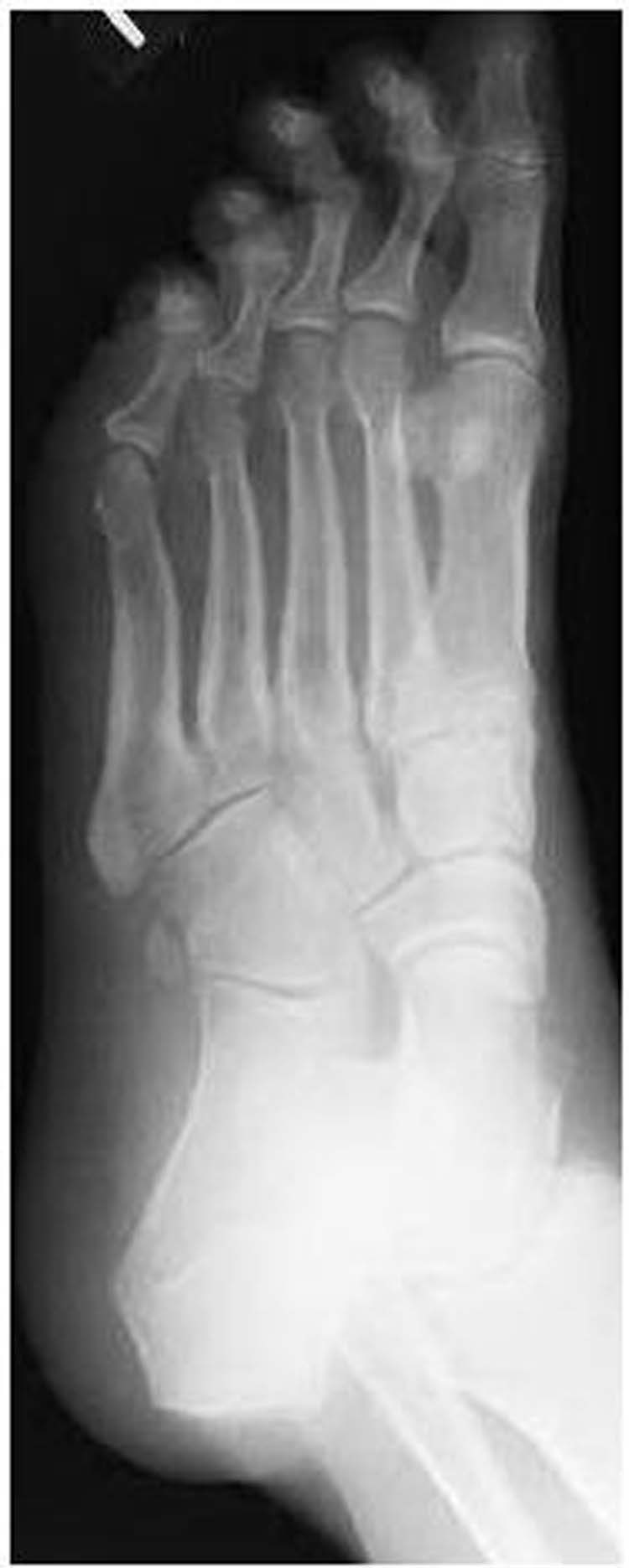 os peroneum | The Foot and Ankle Online Journal