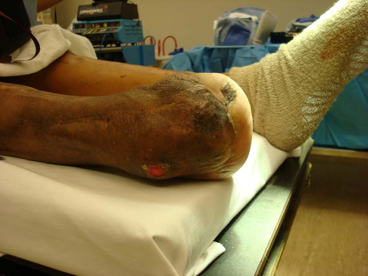 External Fixation The Foot And Ankle Online Journal