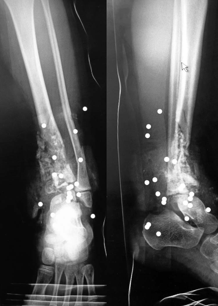 Gunshot Wound: Reconstruction of an ankle defect in a five