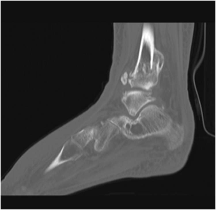 ankle fracture | The Foot and Ankle Online Journal