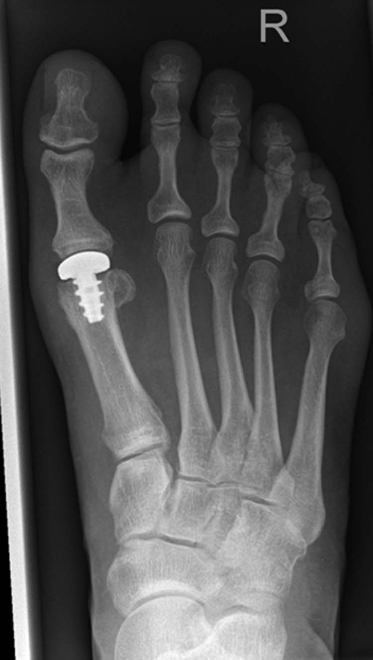 Picture of the Ankle
