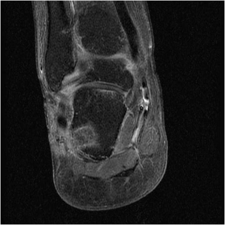 heel pain   The Foot and Ankle Online Journal