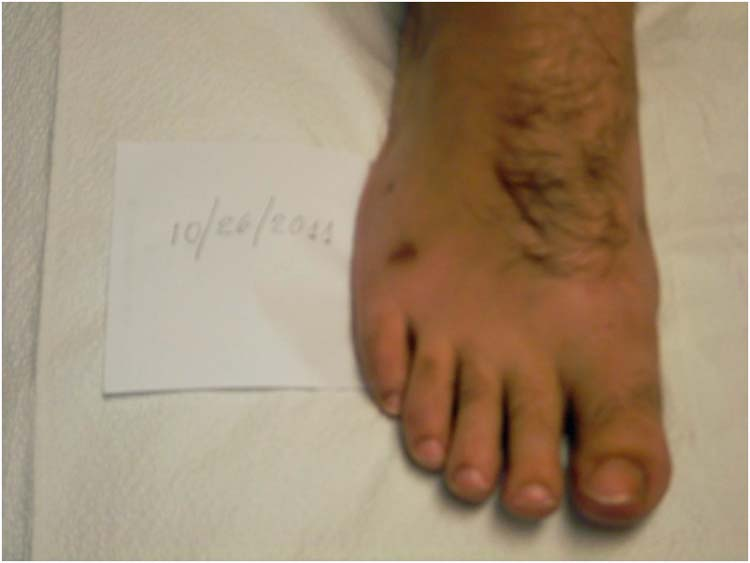 Intraosseous lipoma | The Foot and Ankle Online Journal