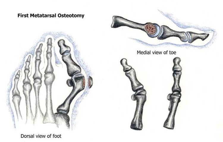 doppel osteotomie hallux valgus