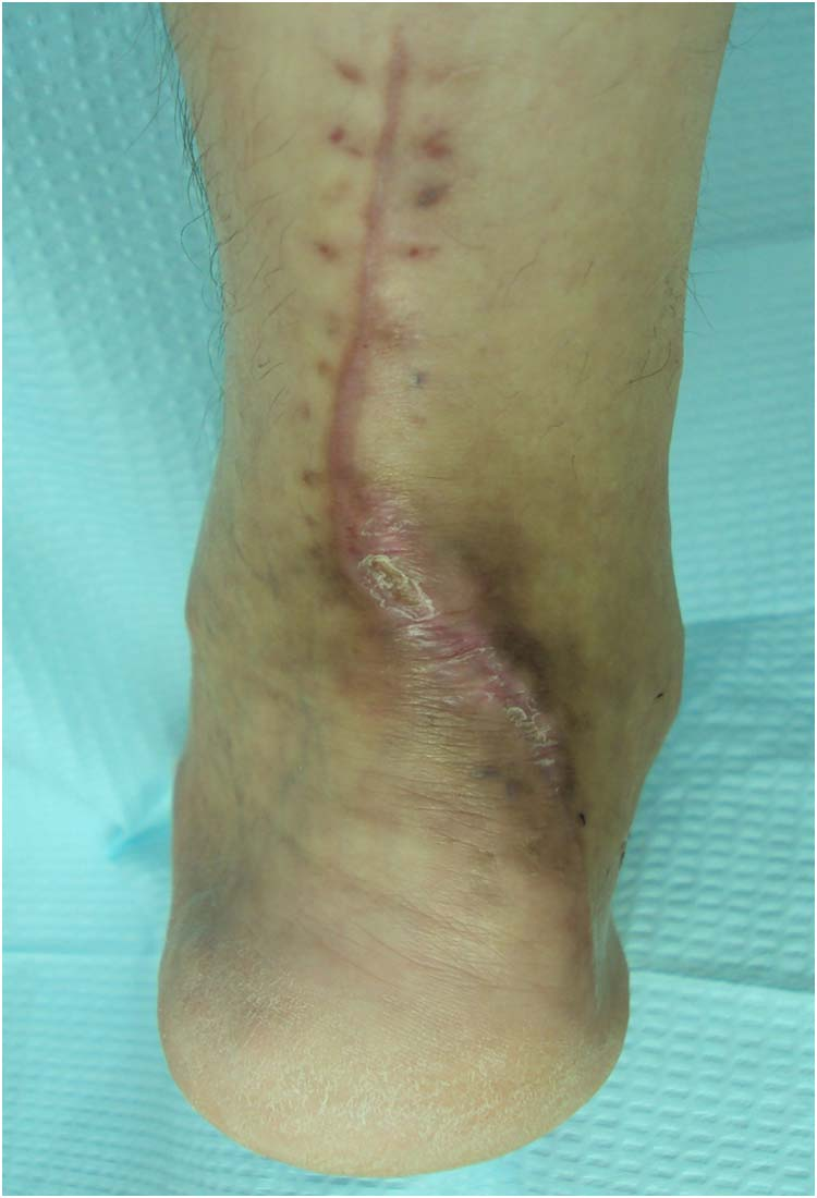 Achilles tendon | The Foot and Ankle Online Journal