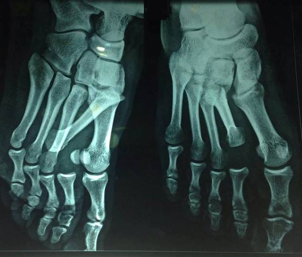 Variant of Lisfranc injury: Floating second metatarsal, a rare ...