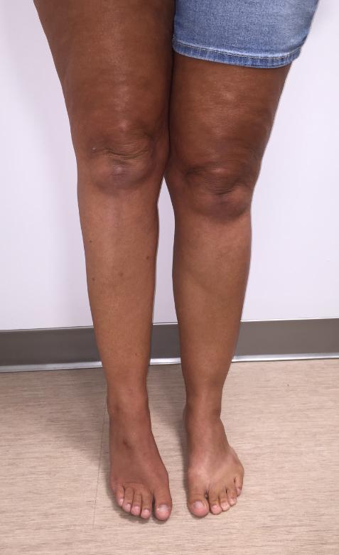 Persistent distal sciatic neuropathy following popliteal