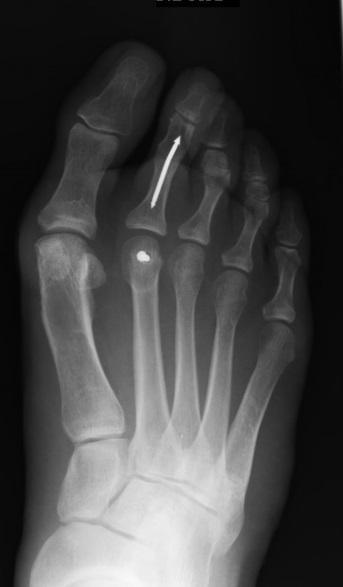 Intramedullary rodding of a toe – hammertoe correction ...