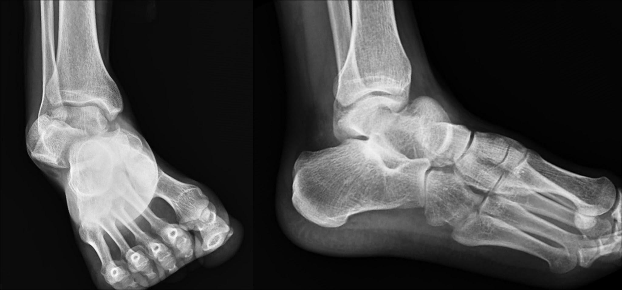 Subtalar dislocation | The Foot and Ankle Online Journal