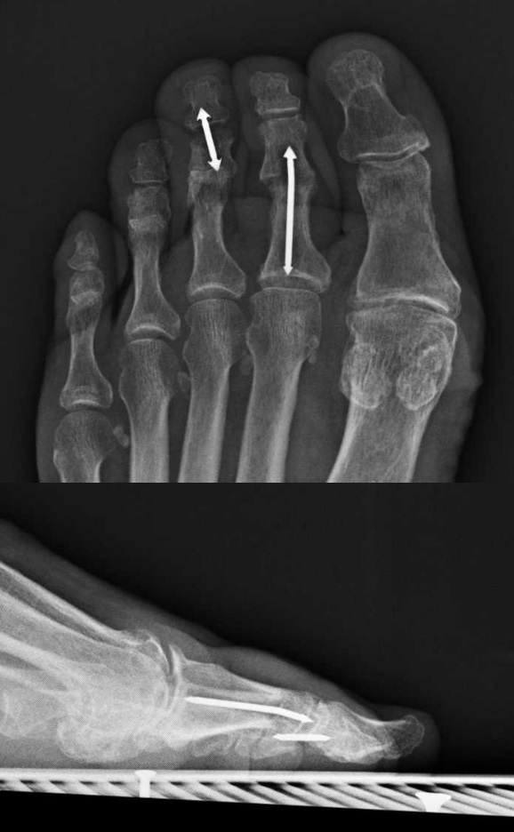 Arthrodesis The Foot And Ankle Online Journal