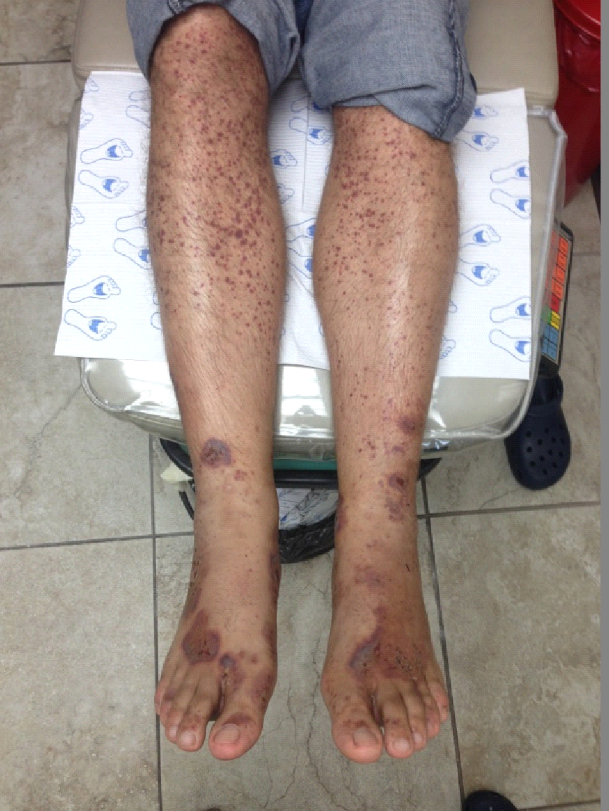 Small-vessel vasculitis: A review and case report | The Foot