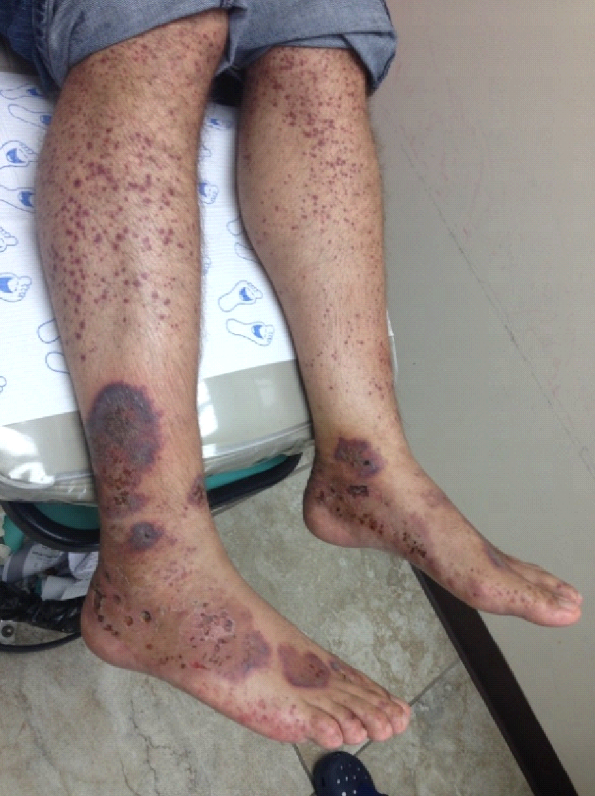 c5853f37247b4c Figure 4 Lower extremity lesions, hemorrhagic vesicles of varying sizes, as  well as pustular lesions with various stages of ulceration were present  ranging ...