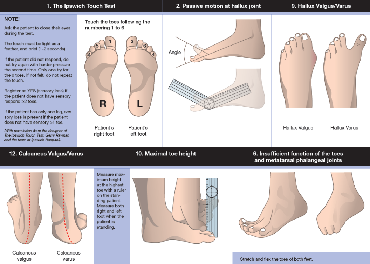 June   2017   The Foot and Ankle Online Journal