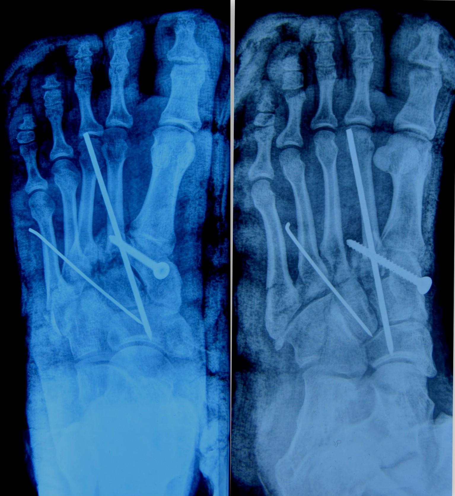 Lisfranc fracture | The Foot and Ankle Online Journal