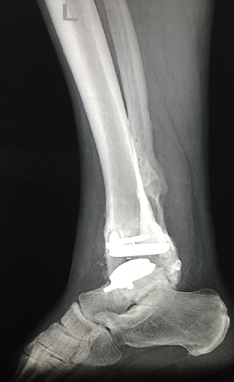 Uncategorized   The Foot and Ankle Online Journal   Page 2